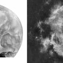 NGC 2237 - nébuleuse de la rosette Vs skull,                                astromat89