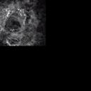 NGC 2237,                                Izaac da Silva Leite